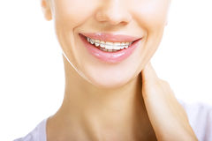 Beautiful smiling girl with retainer for teeth. On white Royalty Free Stock Images
