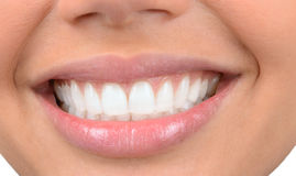 Beautiful Teeth Royalty Free Stock Photography