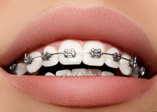Beautiful white teeth with braces. Dental care photo. Woman smile with ortodontic accessories. Orthodontics treatment Stock Photo