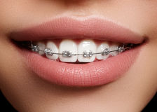 Beautiful white teeth with braces. Dental care photo. Woman smile with ortodontic accessories. Orthodontics treatment Royalty Free Stock Photos