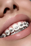 Beautiful white teeth with braces. Dental care photo. Woman smile with ortodontic accessories. Orthodontics treatment Stock Photos