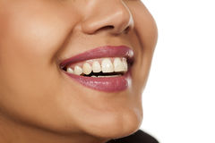Beautiful white teeth Stock Images