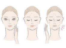 Beautiful woman with annoying pimples stock illustration