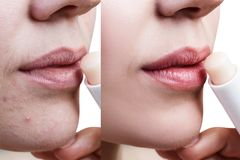 Beautiful woman applying hygienic lip balm. Before and after retouch. Skin Care Concept Stock Photography