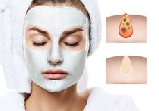 Beautiful woman shows how to pollute and clean the pores on face. Increased skin area with black dot royalty free stock photography