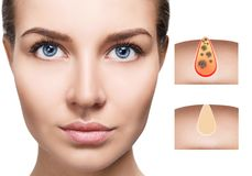 Beautiful woman shows how to pollute and clean the pores on face. Increased skin area with black dot royalty free stock images