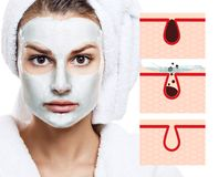 Beautiful woman shows how to pollute and clean the pores on face. Increased skin area with black dot Stock Photos