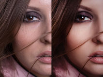 Beautiful woman with before and after skin. Problem skin with blemishes and clear complexion Stock Image