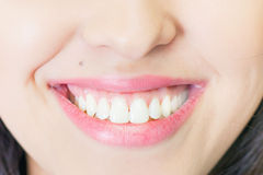 Beautiful woman smile with healthy teeth whitening Stock Photos