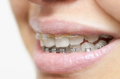 Beautiful smile with braces Stock Photo