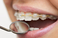 Smile with braces Royalty Free Stock Image