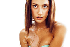 Beautiful young brunette woman with vitiligo disease close up isolated on white positive smiling, model problems concept. Bad tan real problem Royalty Free Stock Image