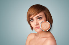 Beautiful young girl with magnifying glass of skin damage Stock Images