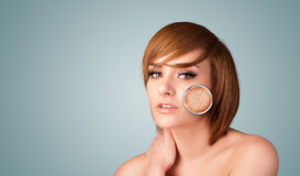 Beautiful young girl with magnifying glass of skin damage Stock Image