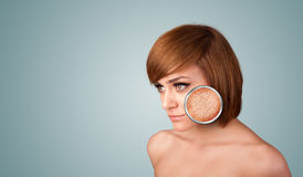 Beautiful young girl with magnifying glass of skin damage Royalty Free Stock Image