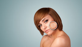 Beautiful young girl with magnifying glass of skin damage Royalty Free Stock Photos