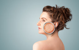 Beautiful young girl with magnifying glass of skin damage Stock Photography