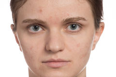 Beautiful young girl with red and white acne on her face. Before Stock Photo