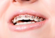 Beautiful young woman with brackets on teeth Royalty Free Stock Images