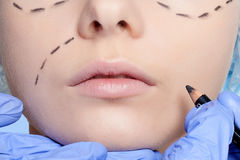 Beautiful young woman perforation lines plastic surgery operatio Stock Photography