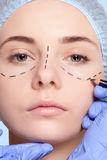Beautiful young woman  perforation lines plastic surgery operation Stock Image