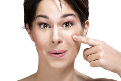 Beautiful young woman showing a pimple on her face Royalty Free Stock Photo