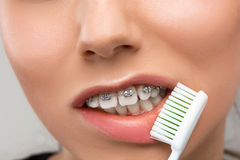 Beautiful young woman with teeth braces. On gray with Toothbrush Royalty Free Stock Images