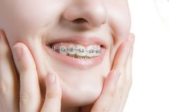 Beautiful young woman with teeth braces Stock Photos