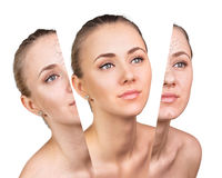 Beauty concept before and after contrast. Stock Photography