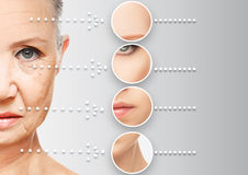 Beauty concept skin aging. anti-aging procedures, rejuvenation, lifting, tightening of facial skin Royalty Free Stock Photo