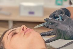 Beauty injections Close Up. Lip filler injection. Beauty treatment royalty free stock photography