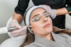 Free Beauty Laser Technician Performing A Cosmetic Skin Resurfacing Session On A Female Patient, Also Called A Laser Peel Or Photofacia Royalty Free Stock Photo - 160953075