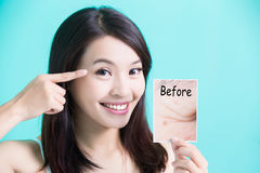 Beauty skincare woman. Take picture and point her eye before and after Stock Images