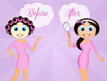 Before and after beauty treatment Stock Image