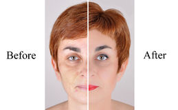 Before and after beauty treatment Royalty Free Stock Photo