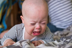 Bebé lindo con el griterío de Síndrome de Down Imágenes de archivo libres de regalías