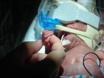 Bebé prematuro en NICU foto de archivo