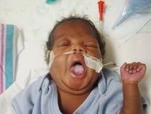 Bebé prematuro que toma un bostezo Fotografía de archivo libre de regalías