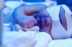 Bebé recién nacido bajo luz ultravioleta Imagenes de archivo
