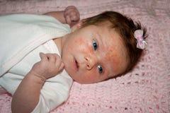 Bebé recién nacido con acné severo del bebé imagenes de archivo