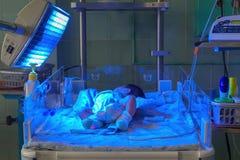 Bebé recién nacido con hyperbilirubinemia bajo luz UV azul para el phototheraphy Imagen de archivo libre de regalías