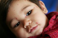Bebê com Pox de galinha Imagem de Stock Royalty Free