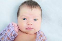 Bebê recém-nascido com icterícia em seu primeiro mês Imagens de Stock