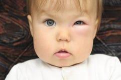Bebé con un ojo hinchado de una mordedura de insecto Imagenes de archivo