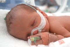 Bebé prematuro Fotos de archivo libres de regalías