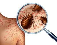 Bed Bug Bites. On human skin or bedbug infestation concept as a magnification close up of parasitic insect pests as a hygiene symbol and health danger of vector illustration