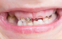 Bederf op tanden stock foto's