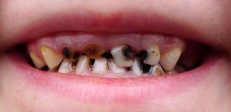 Bederf op tanden van het kind stock fotografie