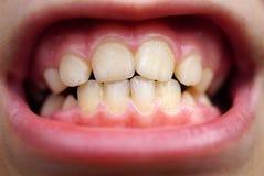 Bederf op tanden van het kind stock foto's
