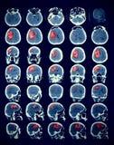 Beeld van de menselijke hersenen met de pathologie vector illustratie
